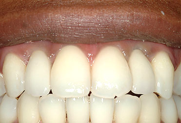 page-images/before-after/abutment-crowns-b.jpg
