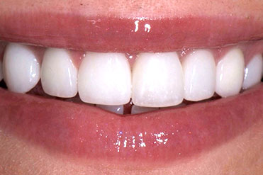 page-images/before-after/implants-crowns-b.jpg